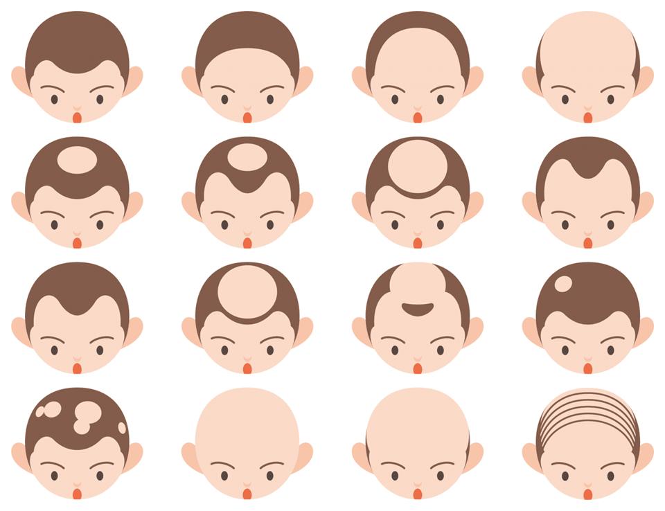 AGA:男性型脱毛症